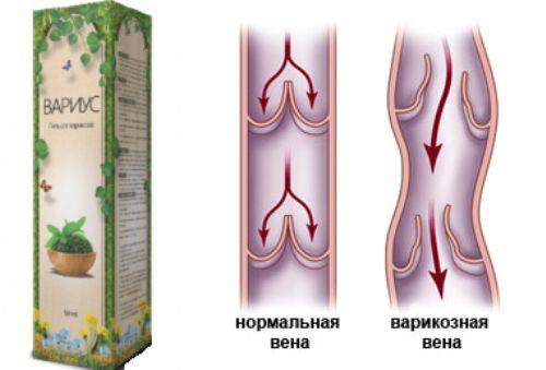 нормальная вена и с варикозом