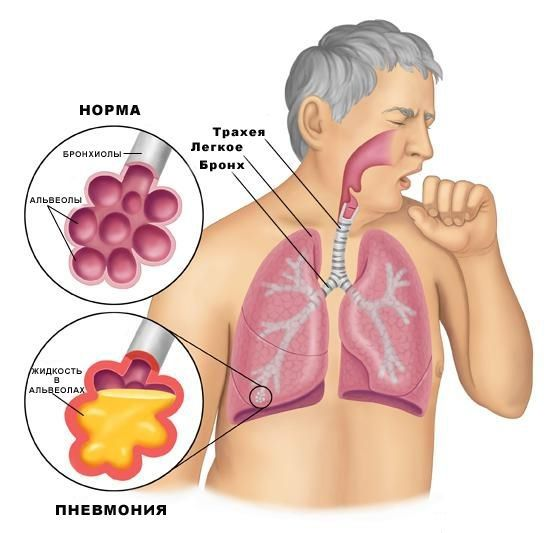 пневмония как боль в спине справа