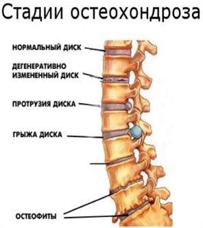 Симптомы и лечение боли в пояснице
