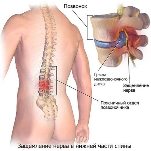 защемление нерва в нижней части спины