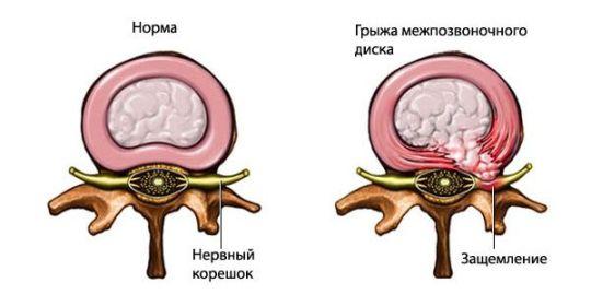 диагностика грыжи поясничного отдела