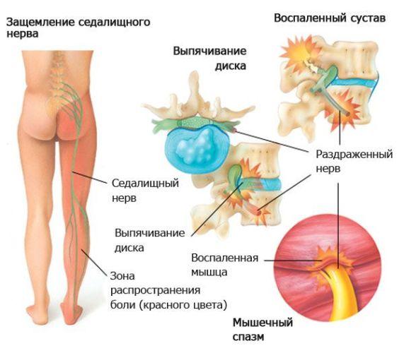 мышечный спазм ишиас