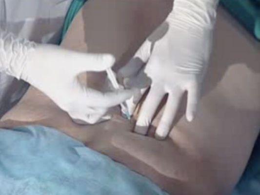 использование уколов при болях в спине