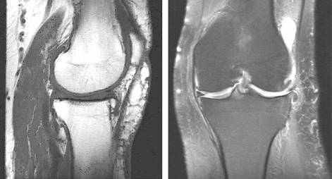 ренген коленного сустава