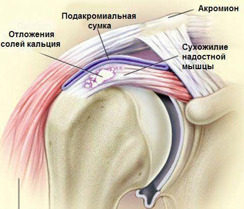 отложения солей кальция в плечевом суставе