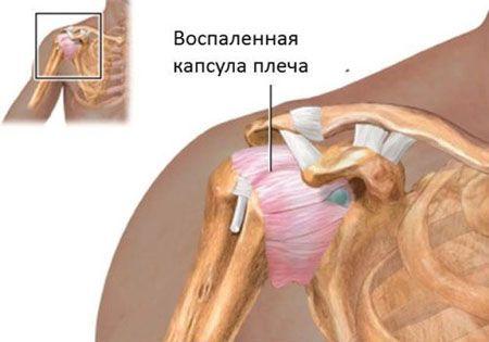 воспаленная капсула плеча