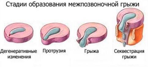 стадии образования грыжи