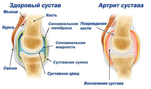 нормальный коленный сустав и ревматоидный