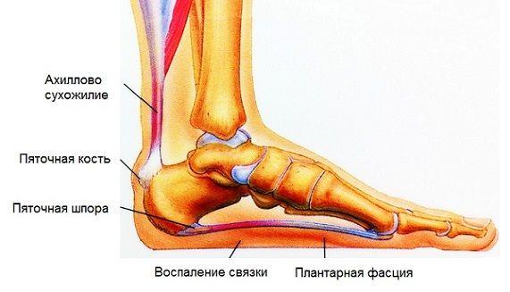 воспаление связок на ноге