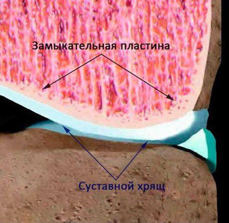 Склероз замыкательных пластин позвоночника что это такое