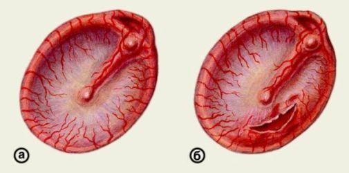 последствия воспаления уха