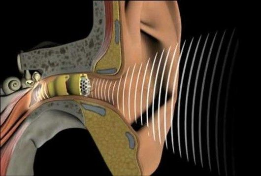 аппарат внутри уха