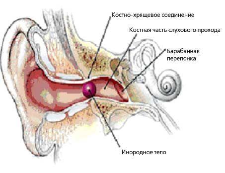 инородное тело в ухе