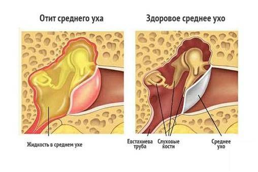 инфекция в ухе