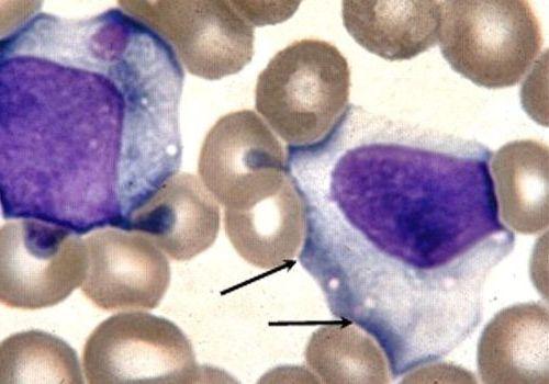 вирус мононуклеоза