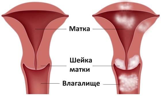 приводят к раку матки