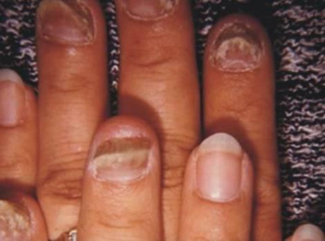 локализация на пальцах