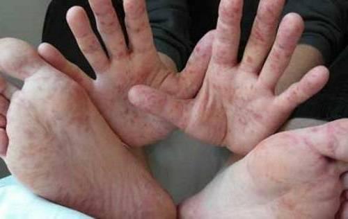 на руках и ногах