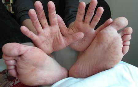 сыпь на руках и ногах