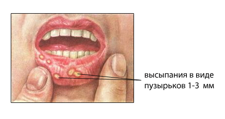 язвы на губе