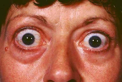 выпученные глаза