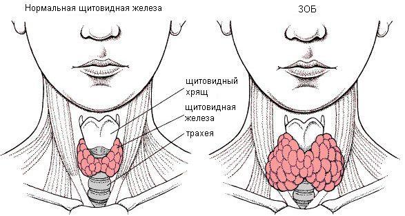 нормальная железа и зоб