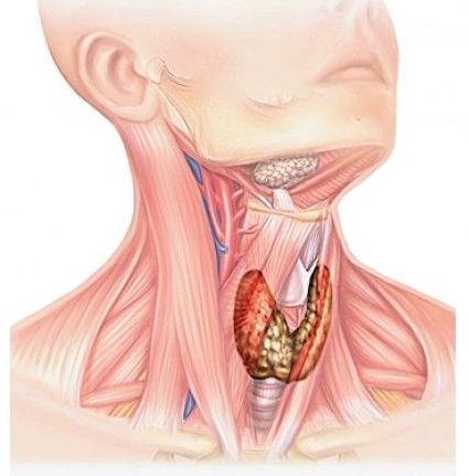 злокачественная стадия щитовидки
