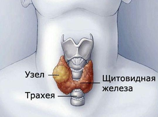 узел трахея щитовидка