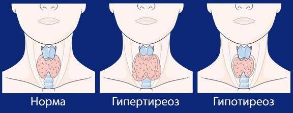 3 заболевания щитовидной железы