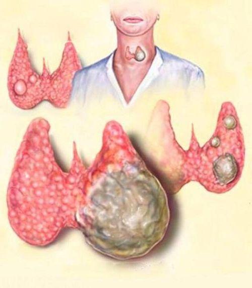 воспаления щитовидной железы