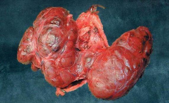 удаленная щитовидка