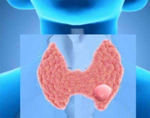возникновение узлов на щитовидке