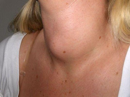 воспаление узлов на щитовидке