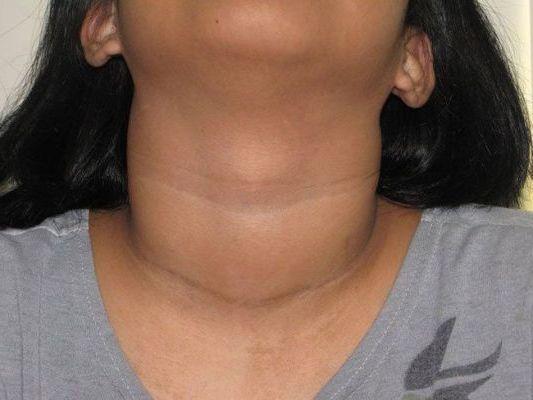 как выглядят симптомы щитовидной железы
