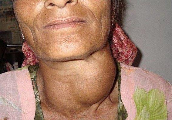 апущенная форма заболевания щитовидной железы