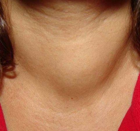 фото перед лечением щитовидной железы