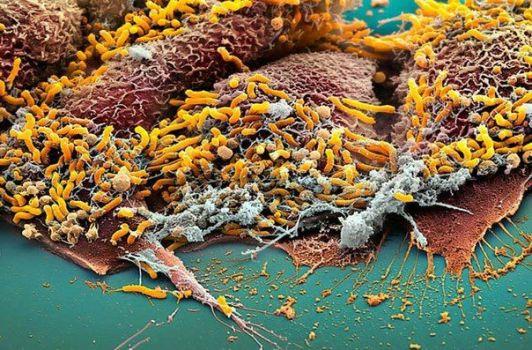 хеликтобактерии