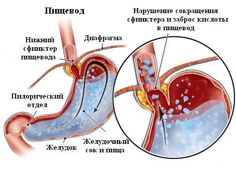 заброс кислоты в пищевод