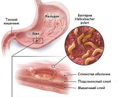 язва и бактерии в желудке
