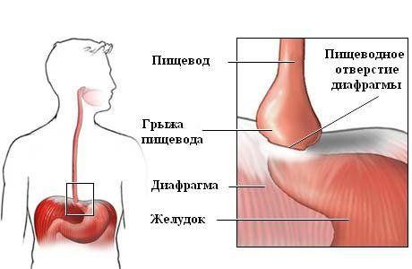 пищевое отверстие диафрагмы