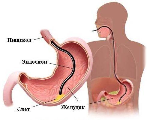 исследование бульбита с помощью эндоскопа