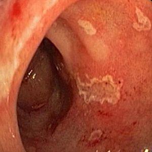 как выглядит бульбит желудка