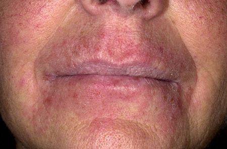 симптомы хеликобактер на лице