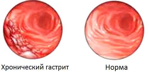 хронический гастрит и нормальный желудок