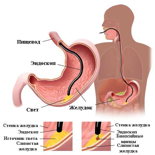 исследование желудка эндоскопом