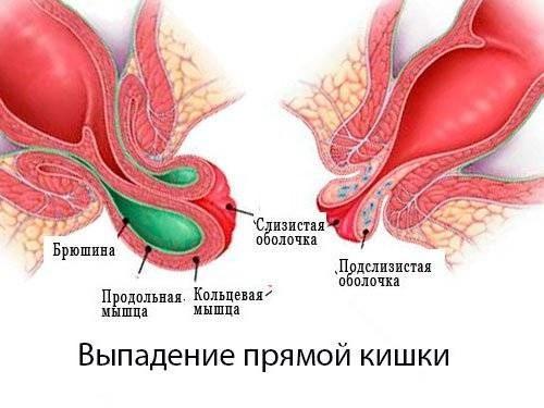 дисфункция мышц