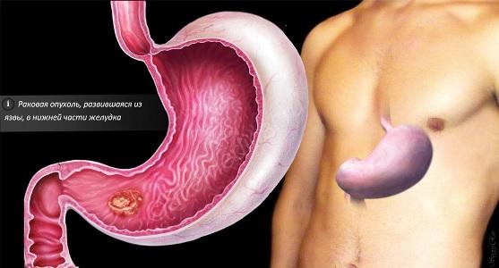 четвертая стадия рака желудка