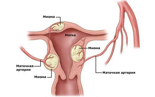 применяется при миоме матки