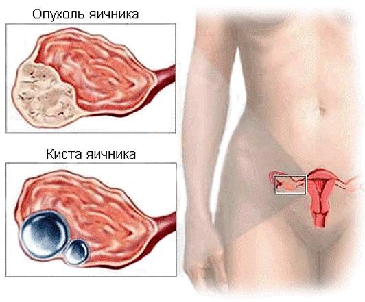 опухоль и киста яичника