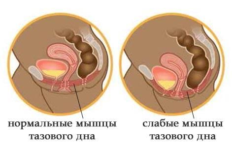 слабые мышцы аза